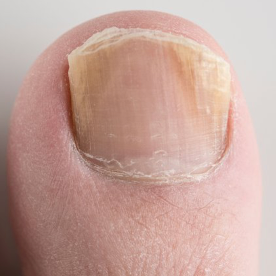 How to Prevent Fungal Toenails This Summer