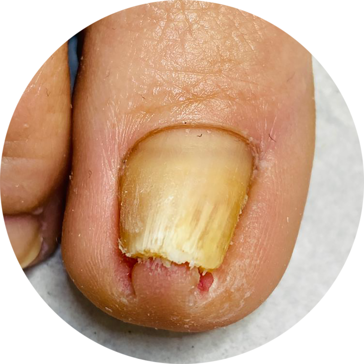 SO Podiatry | Fungal Nail Infection