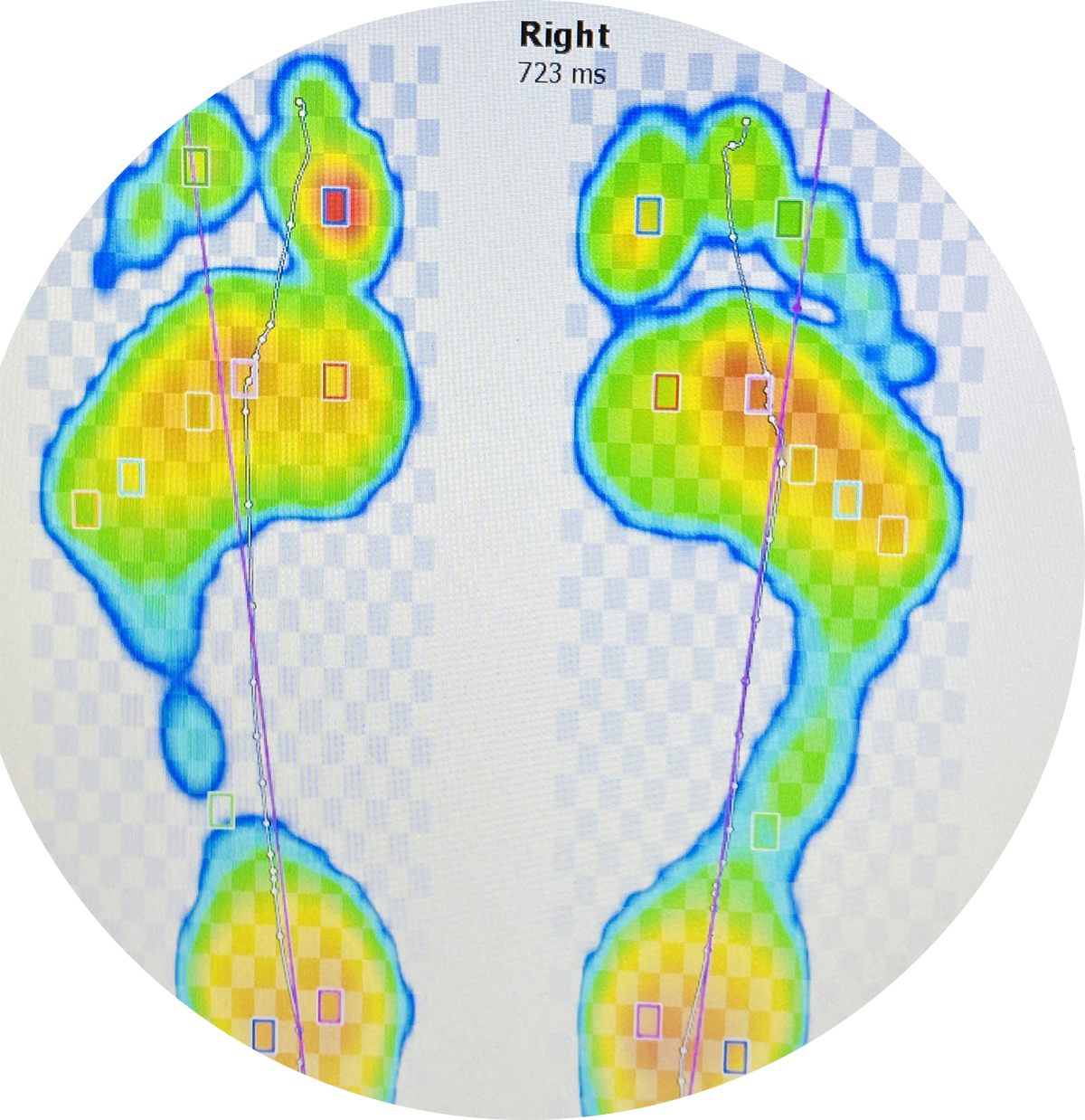 Orthotics RS Foot Scan - SO Podiatry